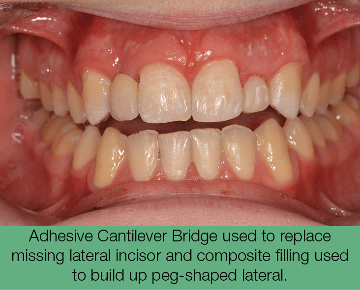 4. Adhesive Cantilever Bridge used to replace missing lateral incisor and composite filling used to build up peg-shaped lateral