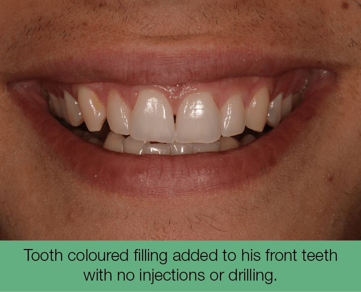 4. Tooth coloured filling added to his front teeth with no injections or drilling