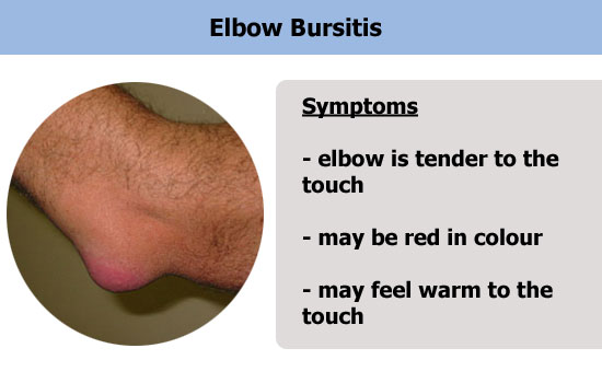elbow bursitis injury
