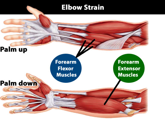 Elbow Strains And Sprains 3 Severity Grades You Must Know And Understand