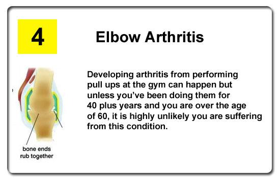 elbow arthritis pain