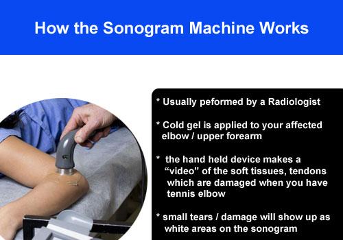 how sonogram machine works