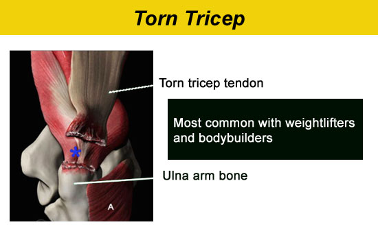 Diagram Of Torn Tricep