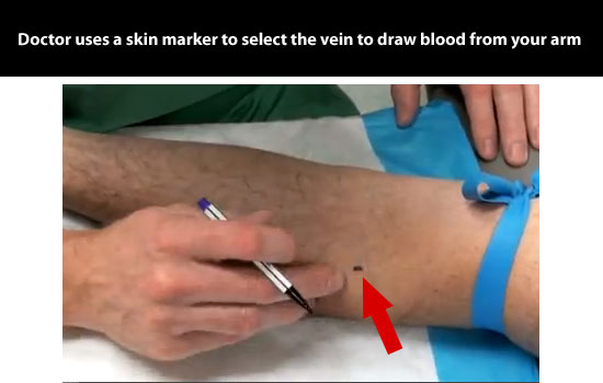 vein marked to draw blood