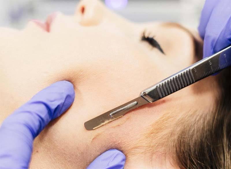 dermaplaning 1 - Skincare