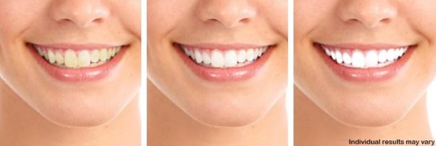 Platinum-Light-Teeth_Kit
