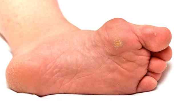 Common Diabetic Foot Problems and Their Solutions