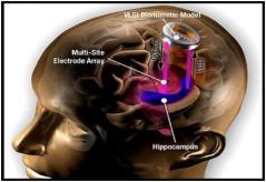 memory-implants