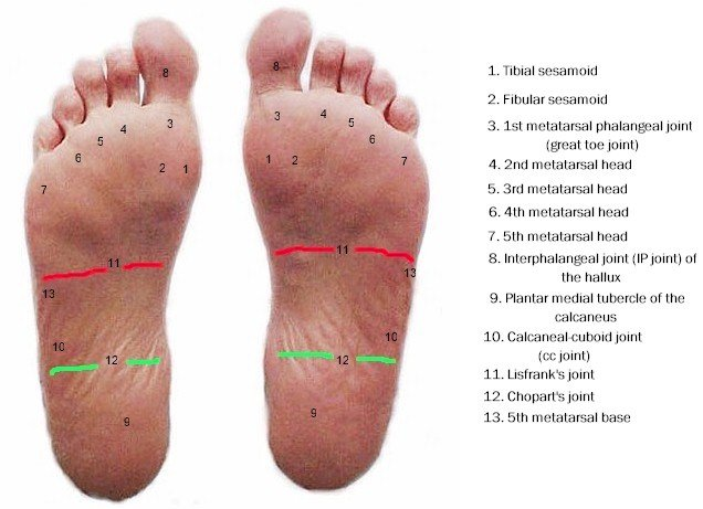 Cumulative plantar stress: deeper insight into healed and non-healed wounds?