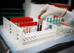 Covid-19 en el sur: 24 nuevos casos positivos