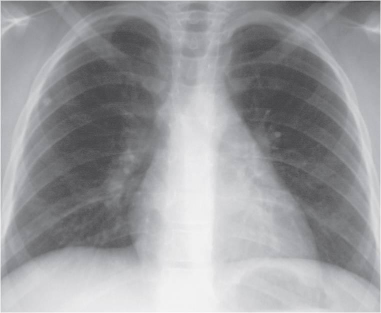 TB – Chest X-Rays | DiagnosisDude