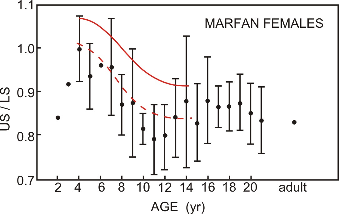 Marfan Syndrome Upper to Lower Segment Ratios
