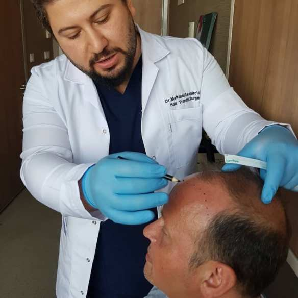 Sapphire Fue Hair Transplant with Dr Mehmet Demircioglu