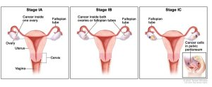 symptoms of ovarian cancer. Ovarian cancer