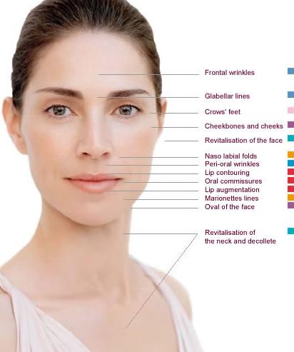 Dermal fillers | Lip Enhancement injections Manchester – Diane