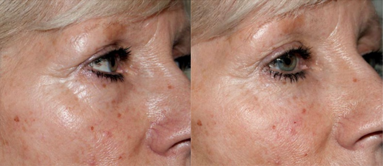 Tear Trough Injections for Dark Under Eye Circles - Diane