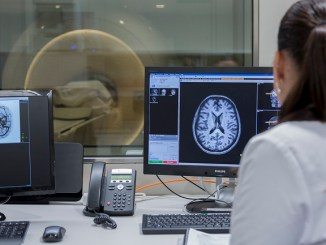 alteracions cervell alzheimer