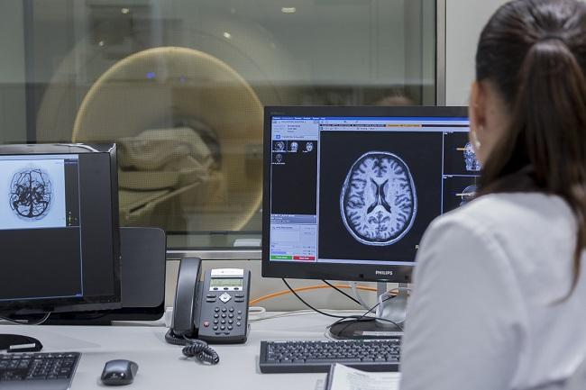 alteracions estructura cerebral alzheimer