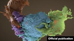 Estructura tridimensional de células T, formadas a partir de células madre en la médula osea, infectadas por el VIH (azul, verde) y no infectadas (marrón, púrpura) interactuando. Foto: Donald Bliss/NLM/NIH.