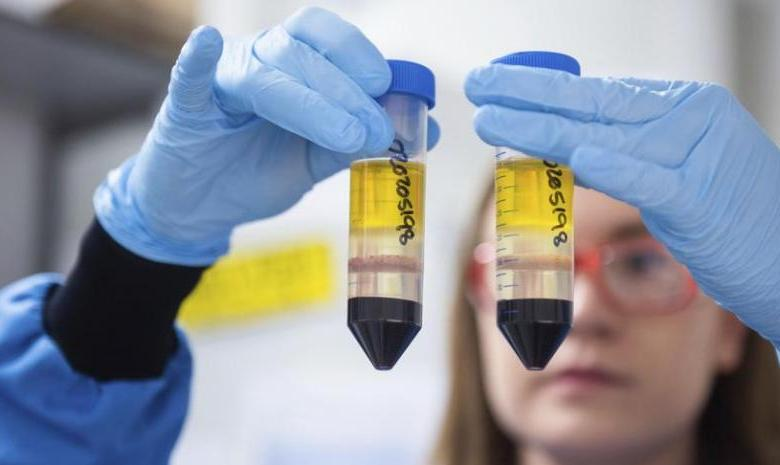 AstraZeneca evalúa combinar su vacuna con la Sputnik rusa 1