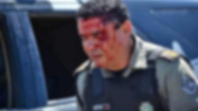 Photo of Ciudad Evita:Policía herido tras robarle su vehículo
