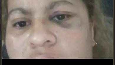 Photo of El temor ante un golpeador prófugo: mujer se encuentra bajo resguardo policial