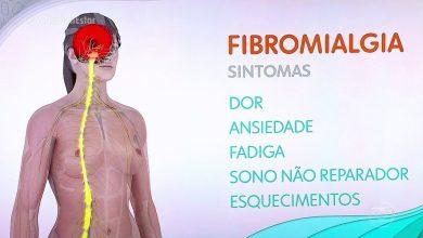 Photo of Abertas inscrições para integrar estudo sobre fibromialgia em Setúbal