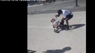 Photo of Jovem 'influencier' esfaqueado nas pernas em rixa na Costa de Caparica
