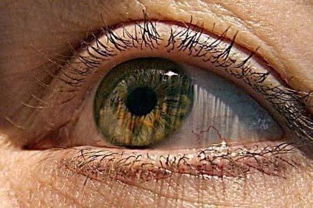 El glaucoma se corresponde con la primera causa de ceguera irreversible en todo el mundo.