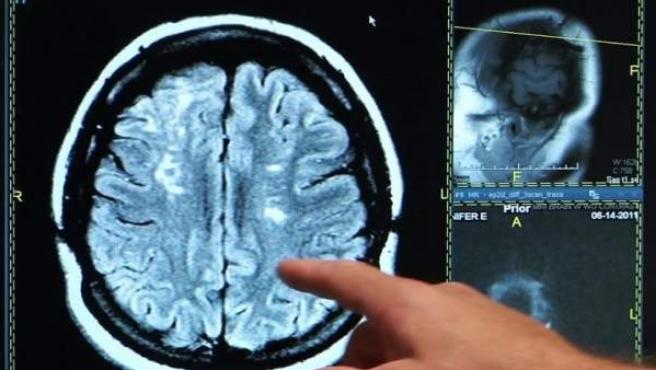 Una radiografía de un cerebro.ONALD REAGAN UCLA MEDICAL CENTER. Fuente externa