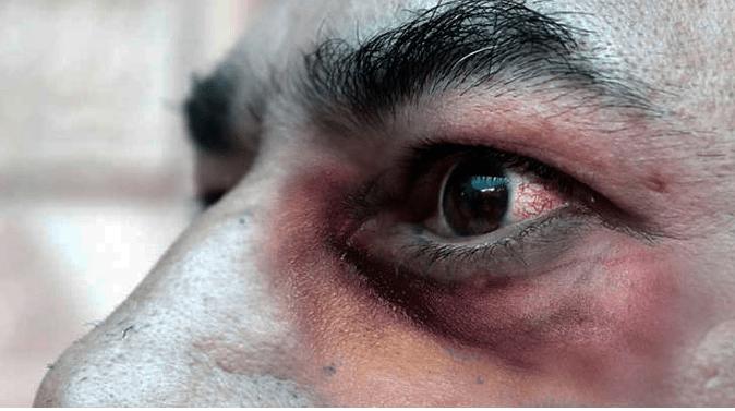 """Casos de """"hongos negros"""", una rara infección que aumenta entre pacientes con covid-19. FUENTE EXTERNA."""