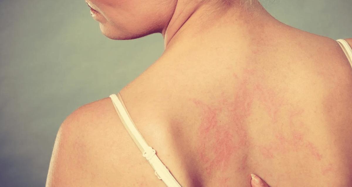 La dermatitis atópica es una enfermedad inflamatoria  de la piel difícil de tratar