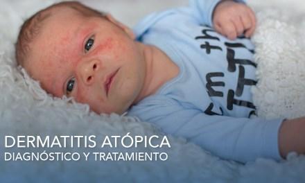 Dermatitis Atópica, diagnóstico y tratamiento