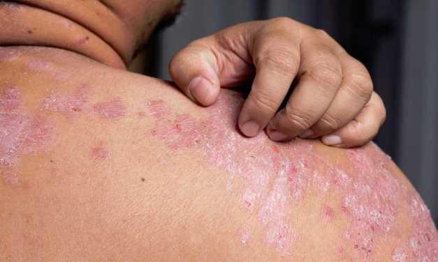La Psoriasis, una enfermedad que acompaña toda la vida