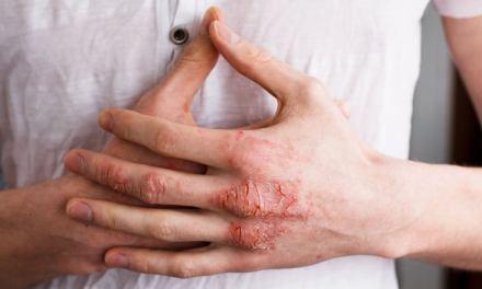 Formas clínicas de la Psoriasis