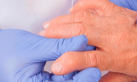 Cuidados que deben tener los pacientes reumatológicos en la pandemia