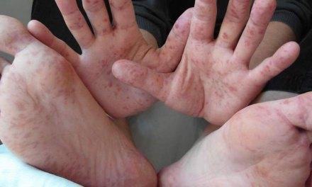 La enfermedad de manos, pies y boca es más común de lo que se piensa
