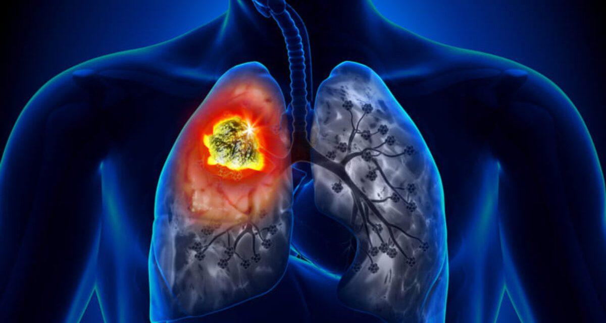 Noviembre, mes para concientizar sobre la prevención del cáncer de pulmón