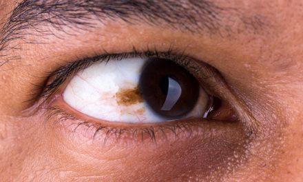 Cáncer de ojo: ¿Cómo detectarlo a tiempo?