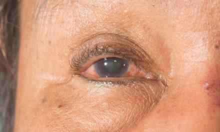 Glaucoma, el ladrón silencioso de la visión: ¿cómo detectarla a tiempo?