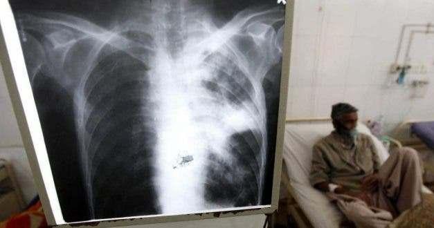 Tuberculosis y COVID-19, dos epidemias respiratorias que ahora coexisten