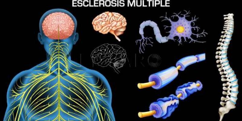 30 de mayo un día dedicado a visibilizar la Esclerosis Múltiple
