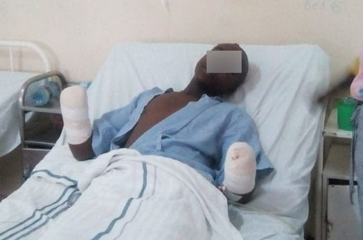 The seventeen-year old boy from Mutuati in Meru county who was attacked by seven men and had his hands chopped off on suspicion of stealing miraa. He is recuperating at Meru Teaching and Referral Hospital. PHOTO | DAVID MUCHUI