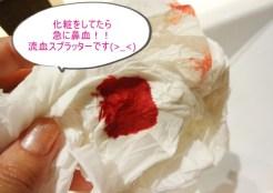筋トレ直後の鼻血