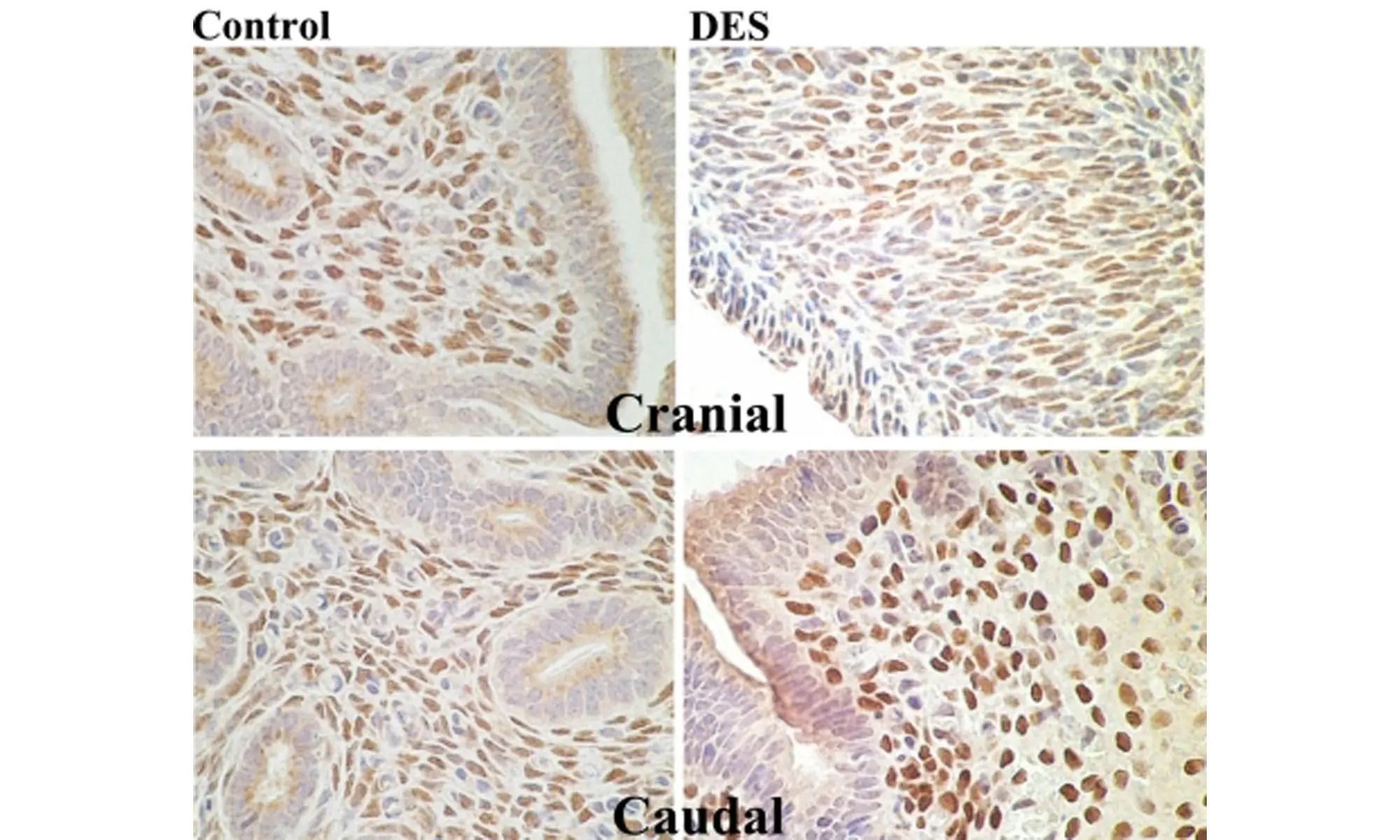 image of homeobox gene HOXA10 expression
