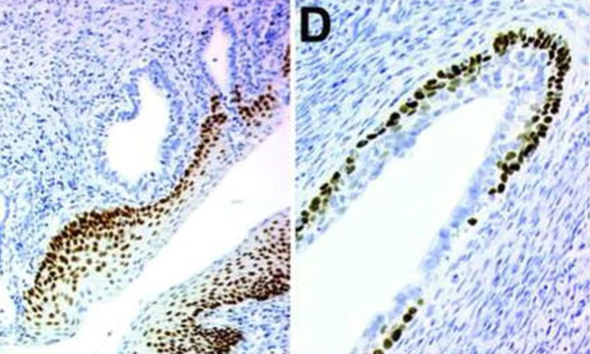 image of TRP63 in the vaginae of C57BL6 adult (P60) mice injected with DES