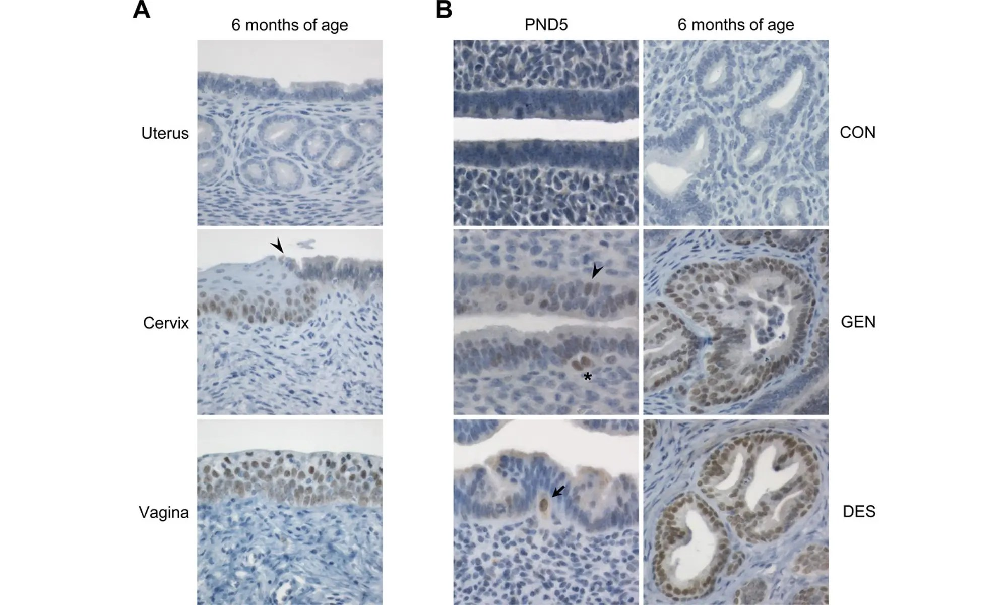 Developmental DES exposure induces persistent endometrial protein SIX1 expression