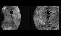 DES Daughters : Metroplasty for Uterine Enlargement
