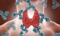 Prenatal DES exposure linked to Hashimotos thyroiditis