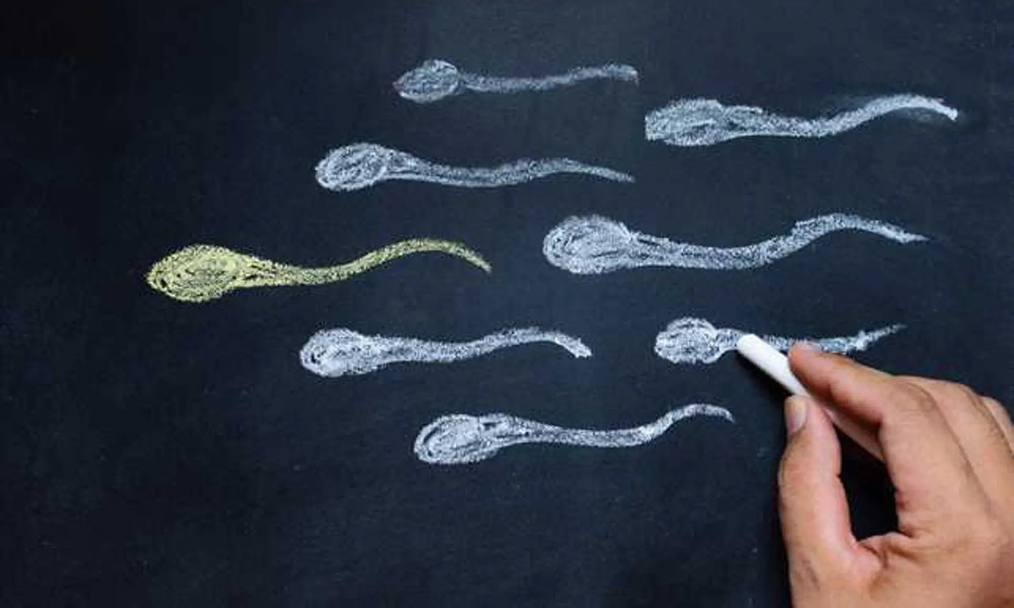 Decreased Sperm Quality